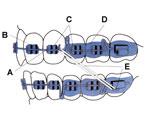 diagram of braces